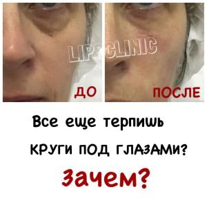 Коррекция носослезной борозды филерами Yvoire