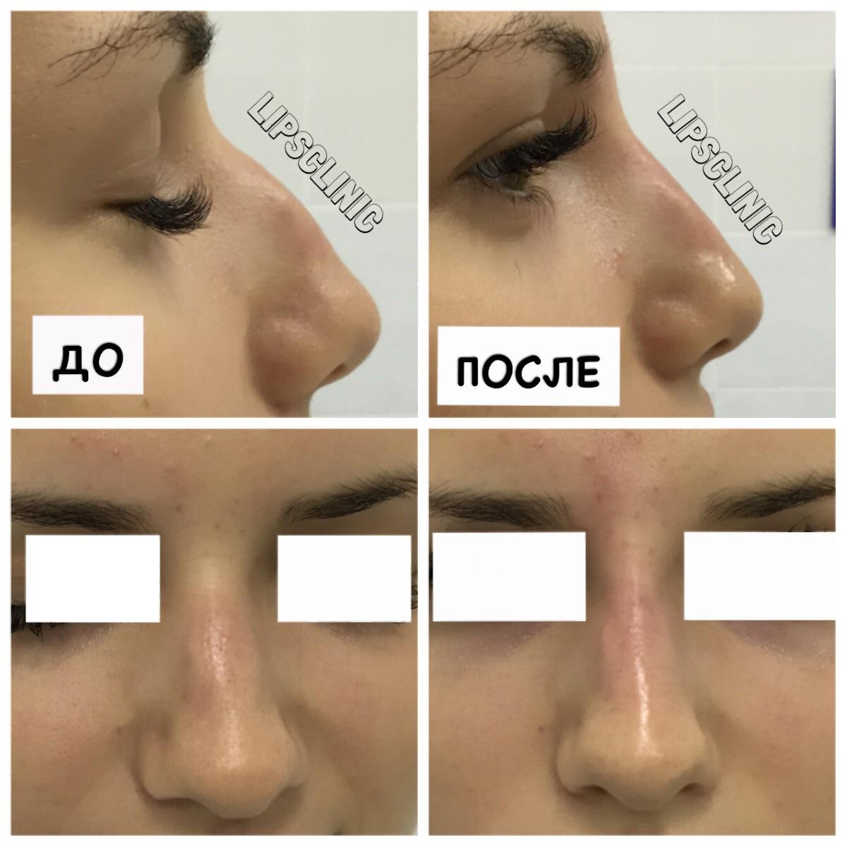 Коррекция формы носа филерами Yvoire