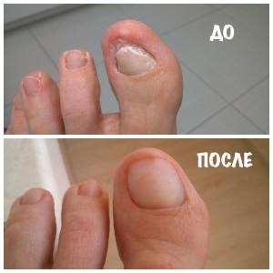 протезирование ногтей до и после