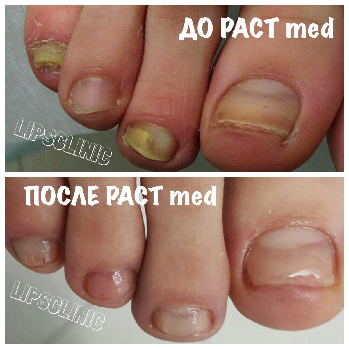 до и после проведения сеансов PACT Med