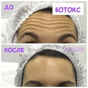 До и после ботокса - убираем морщины