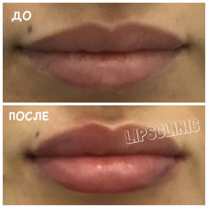 До и после коррекции формы и объема губ