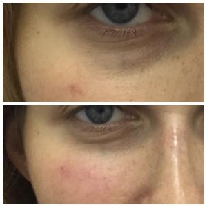 до и после коррекции носослезной борозды