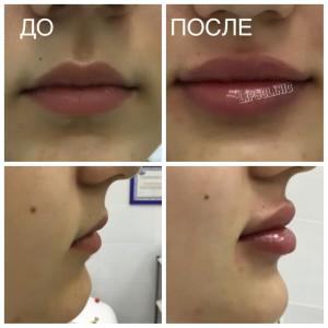 Коррекция формы и объема губ филерами гиалуроновой кислоты