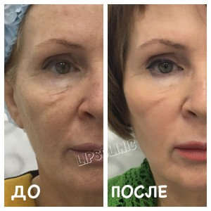 До и после BODY TITE «Fractora»