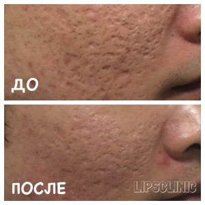 Before and after BODY TITE «Fractora»